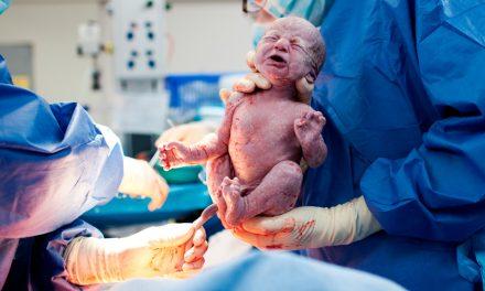 La cesárea afecta al cerebro del bebé